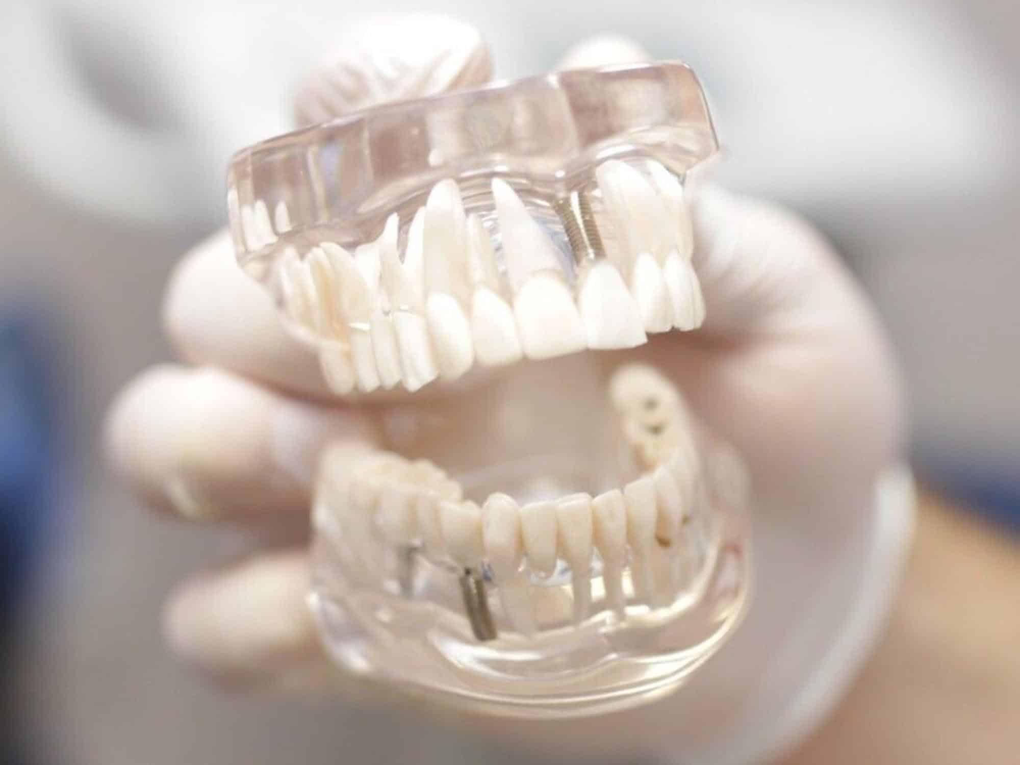 Комбинированное протезирование зубов